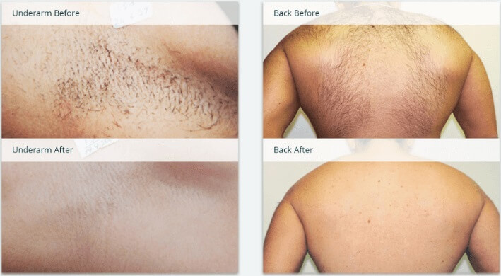 808nm diode laser hair removal machine before and after (1)