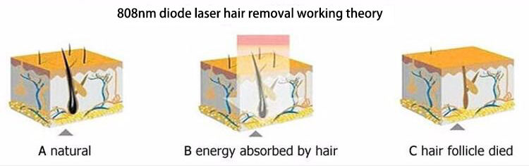 808nm diode laser hair removal machine for sale theory