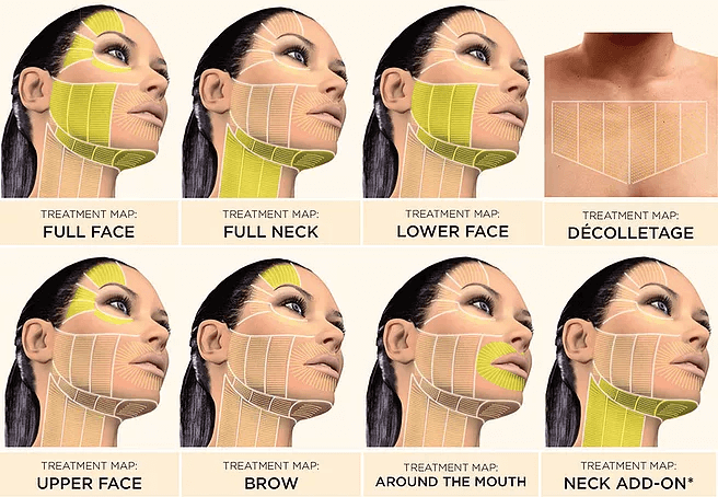 4D HIFU for face