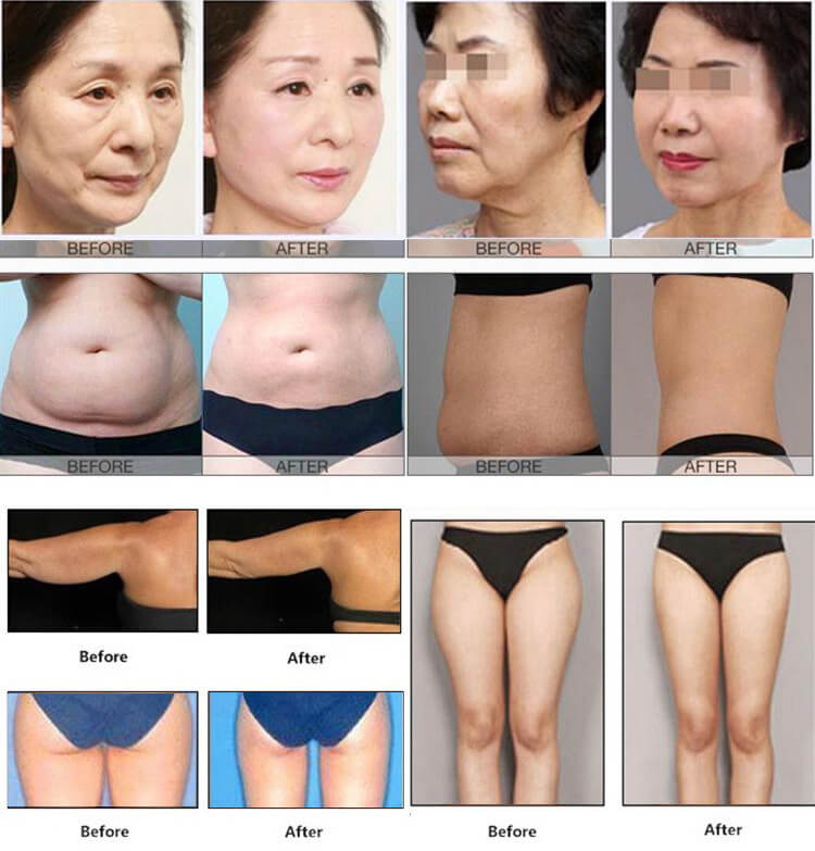 4d hifu before after